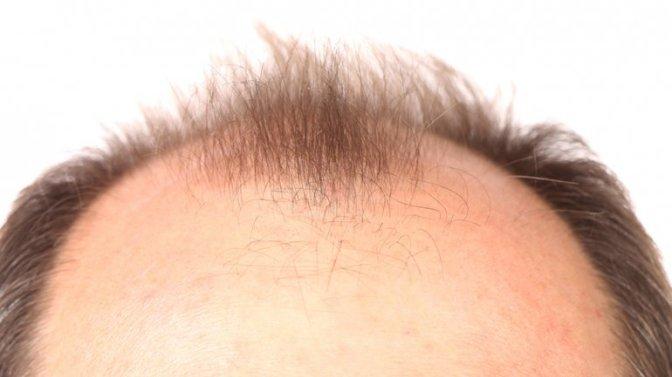 Anatomía de un cabello